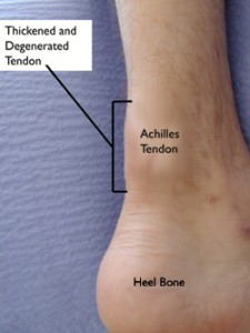 Chronic achilles tendinopathy
