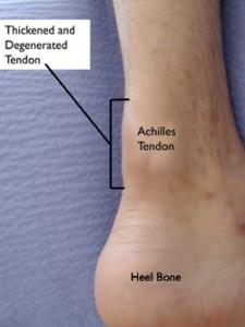 Chronic achilles tendinopathy
